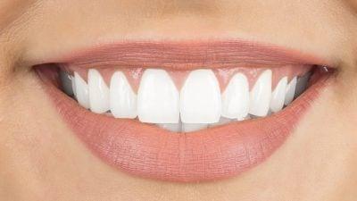 Hvitt smil med tannbleking